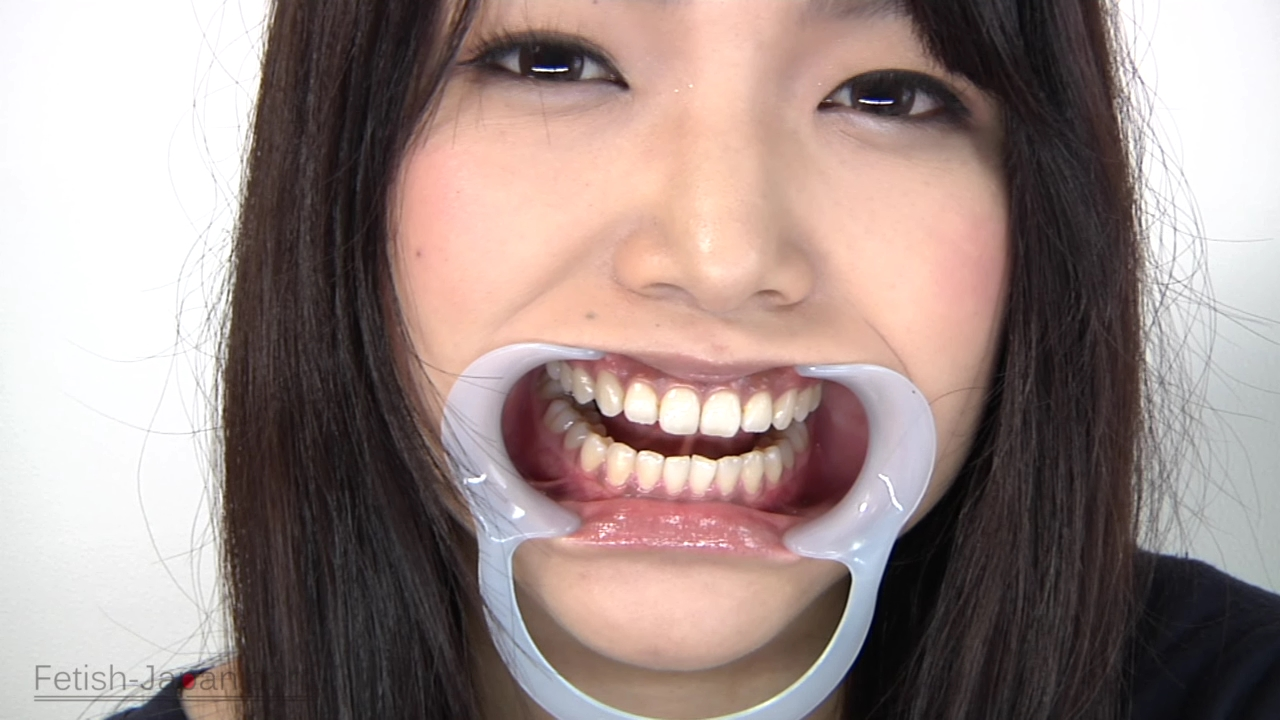 歯観察/篠めぐみ (3)