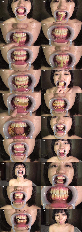 夏希のあが開口器をつけてお菓子を咀嚼する歯を超接写