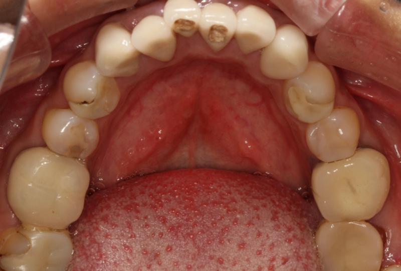宮地真緒の歯・口内接写 (6)