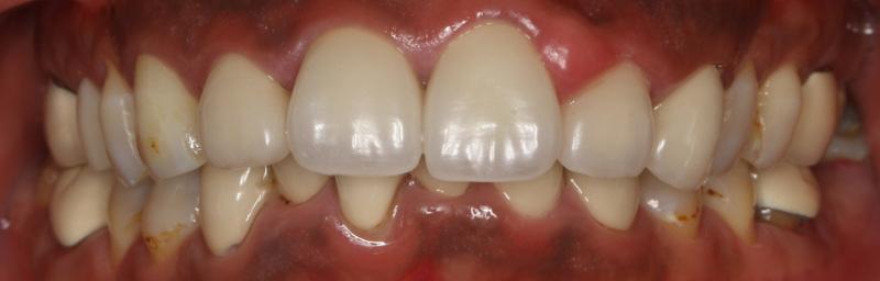 宮地真緒の歯・口内接写 (2)