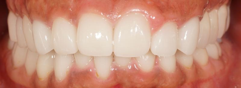 宮地真緒の歯・口内接写 (8)