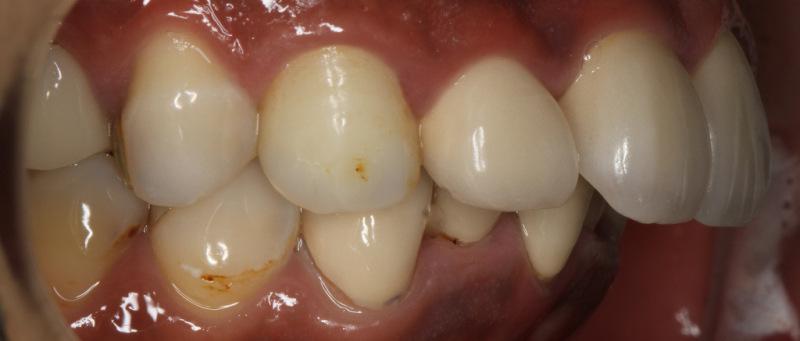 宮地真緒の歯・口内接写 (3)