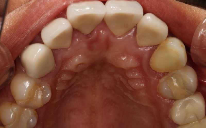 宮地真緒の歯・口内接写 (5)