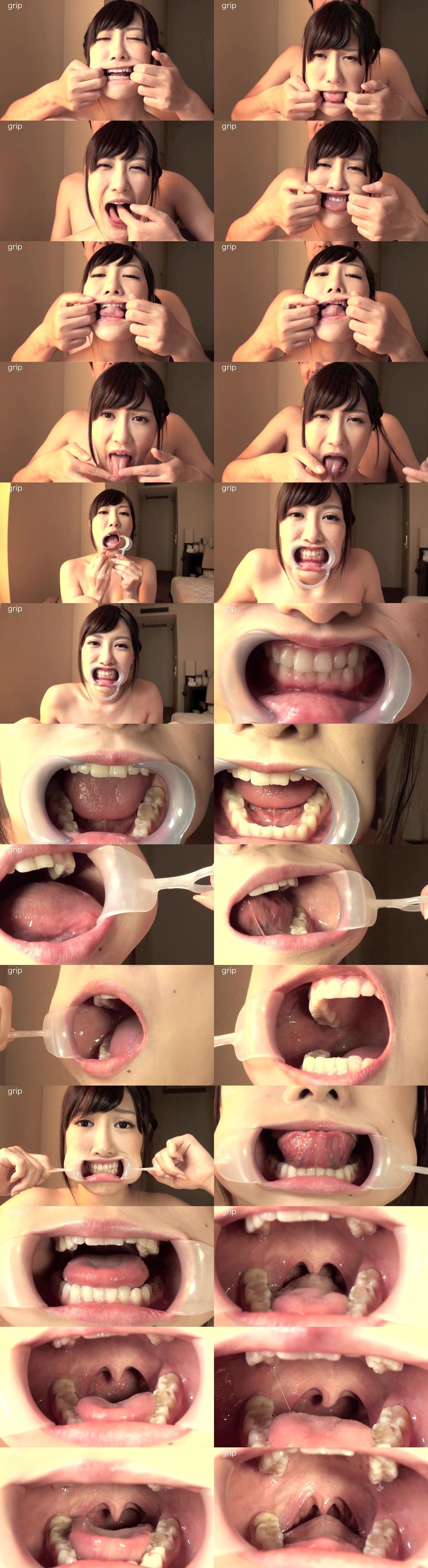 開口器をつけた小峰みこの口腔内鑑賞。顔面崩壊&歯と震える喉ちんこ