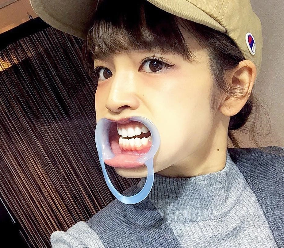富久美玲の開口器顔 (1)