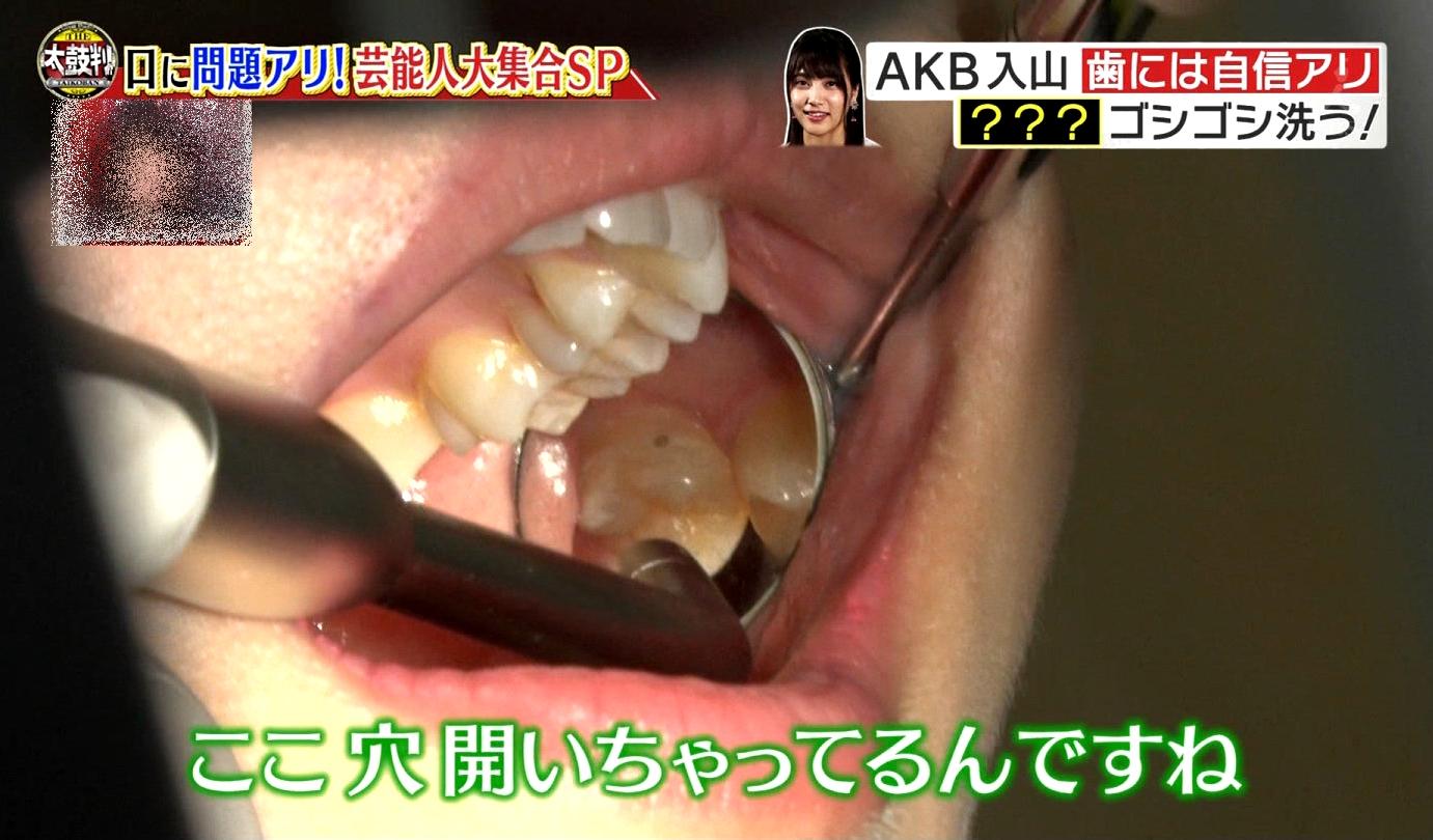 入山杏奈の口内観察 (2)