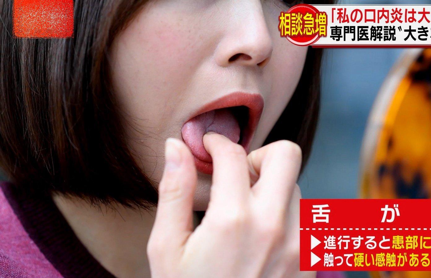 久冨慶子の舌観察&舌弄り (5)