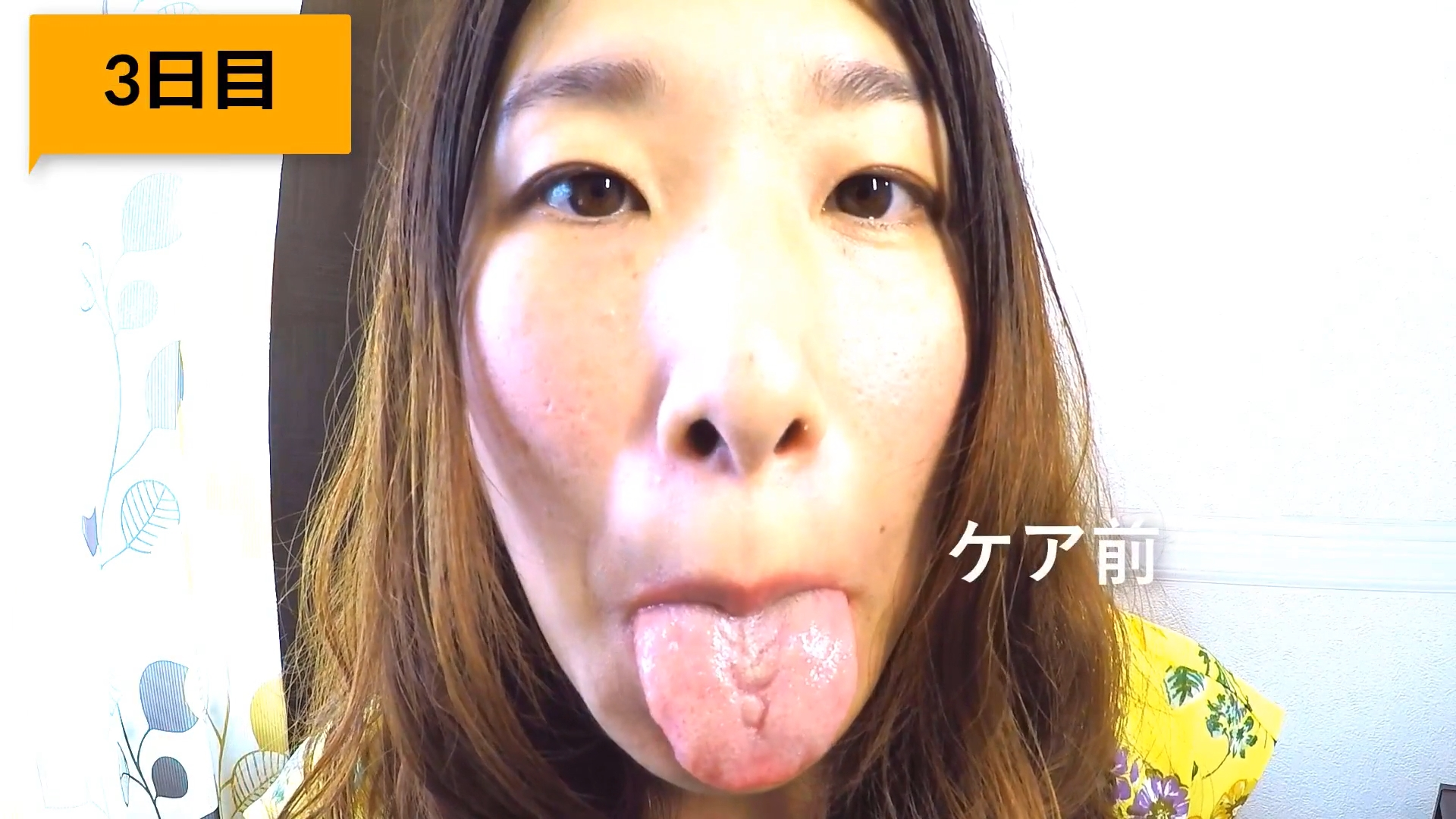 YouTuberの割れ汚舌 (10)