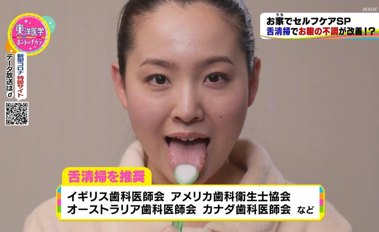 舌モデルの汚舌磨き (2)
