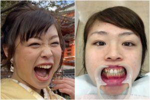 植草歩の舌唾