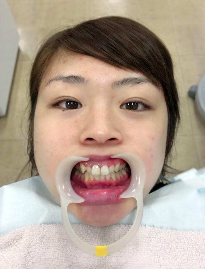 植草歩の舌唾 (20)